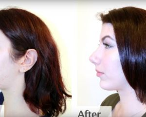Lilly: Rhinoplasty & Chin Implant Patient Transformation by Dr. Garo Kassabian